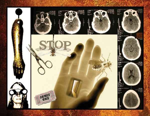 Stop-assemblage